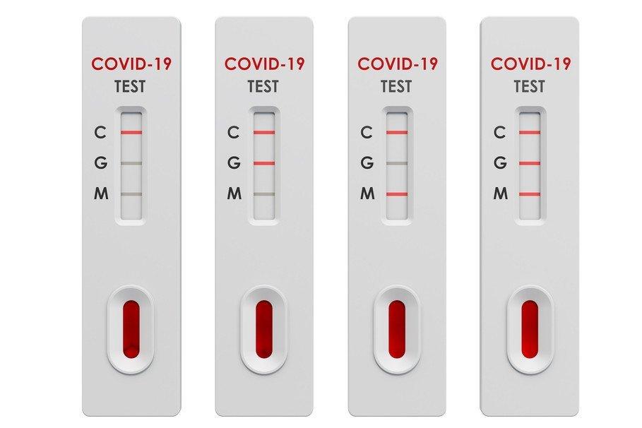 Тест на антитела к коронавирусу