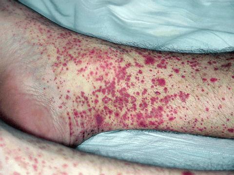 ангиит при коронавирусе при тяжелой форме