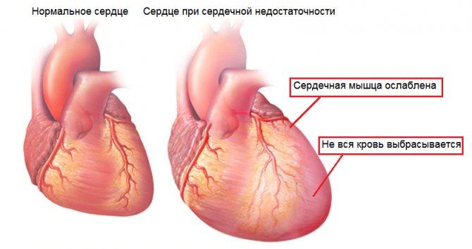 осложнения на сердце при коронавирусе