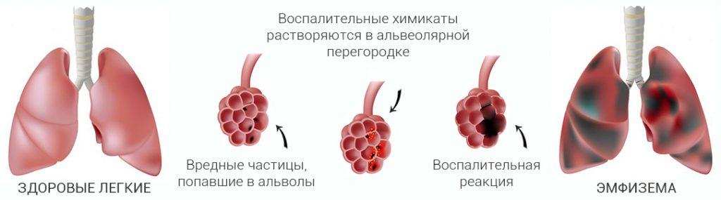 осложнения на легкие при коронавирусе