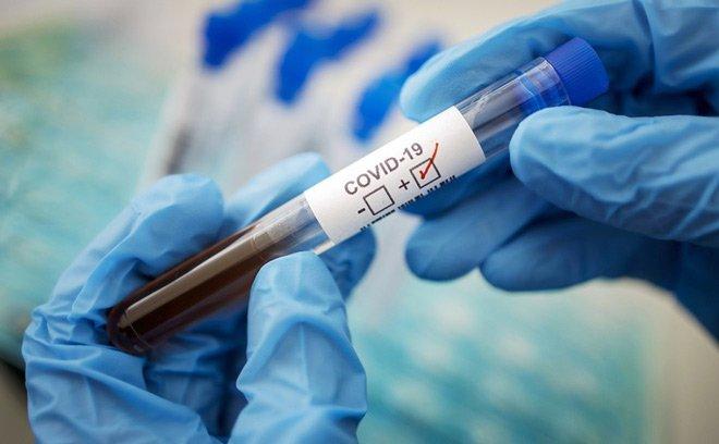 потвороное заражение коронавирусом