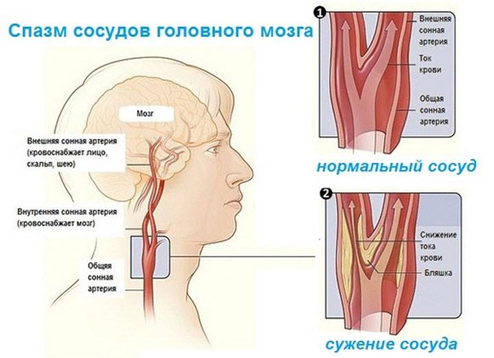 сосуды при коронавирусе