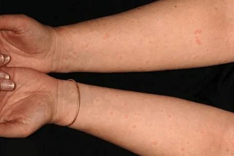 волдыри при коронавирусе