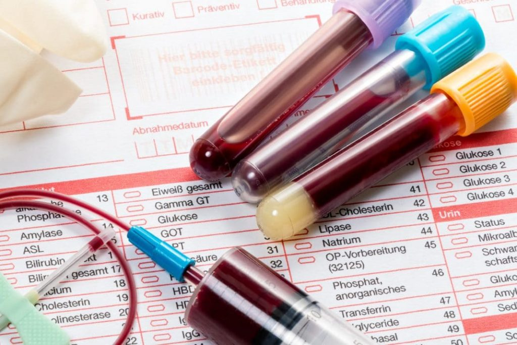 анализ крови при коронавирусе