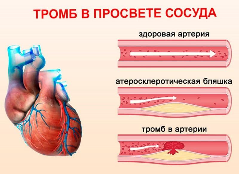 чем опасны тромбы при коронавирусе
