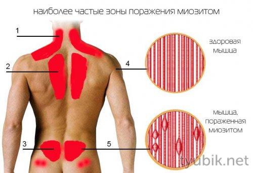 почему болят мышцы при коронавирусе