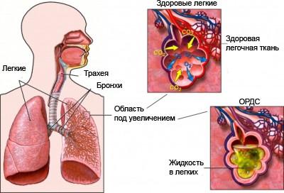респираторный дистресс-синдром при коронавирусе