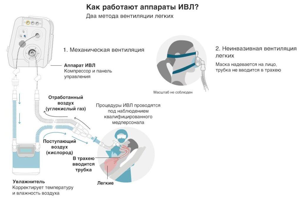 Как подключают к ИВЛ при коронавирусе