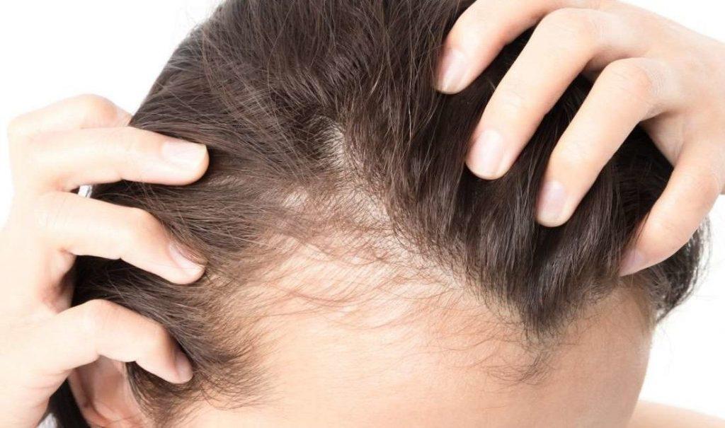 выпадают волосы при коронавирусе