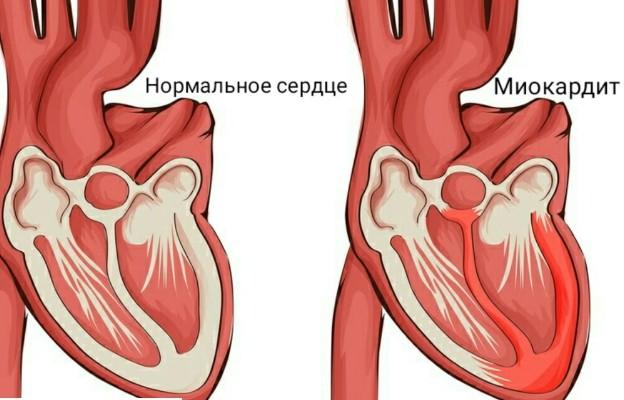 осложнения на сердце при коронавирус