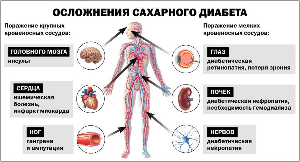 последствия коронавируса при сахарном диабете