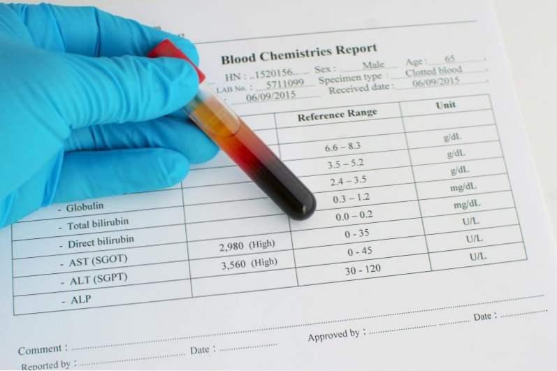 Анализы после коронавируса для проверки работы печени