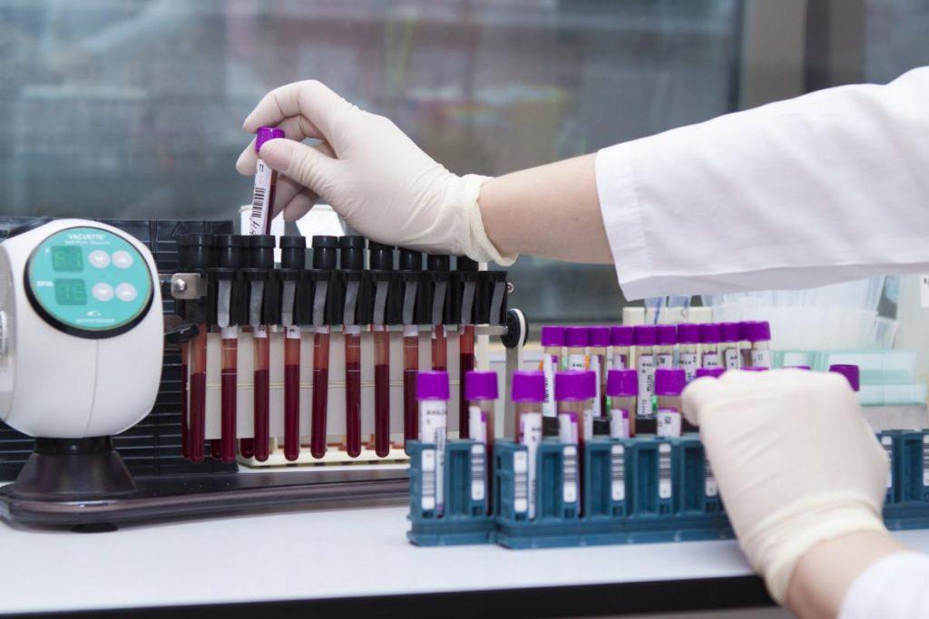 Как проводится тест на антитела к коронавирусу