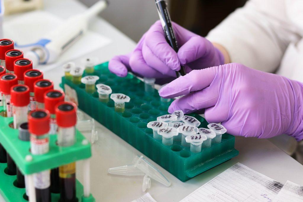 Тесты на антитела к коронавирусу