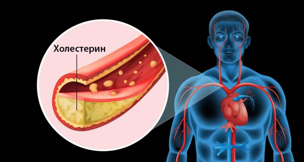 Симптомы повышенного холестерина у женщин и мужчин