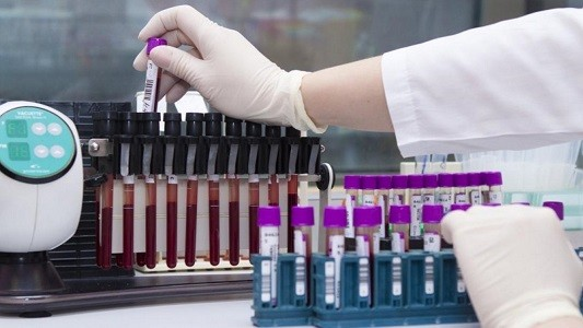 Единицы измерения антител к коронавирусу